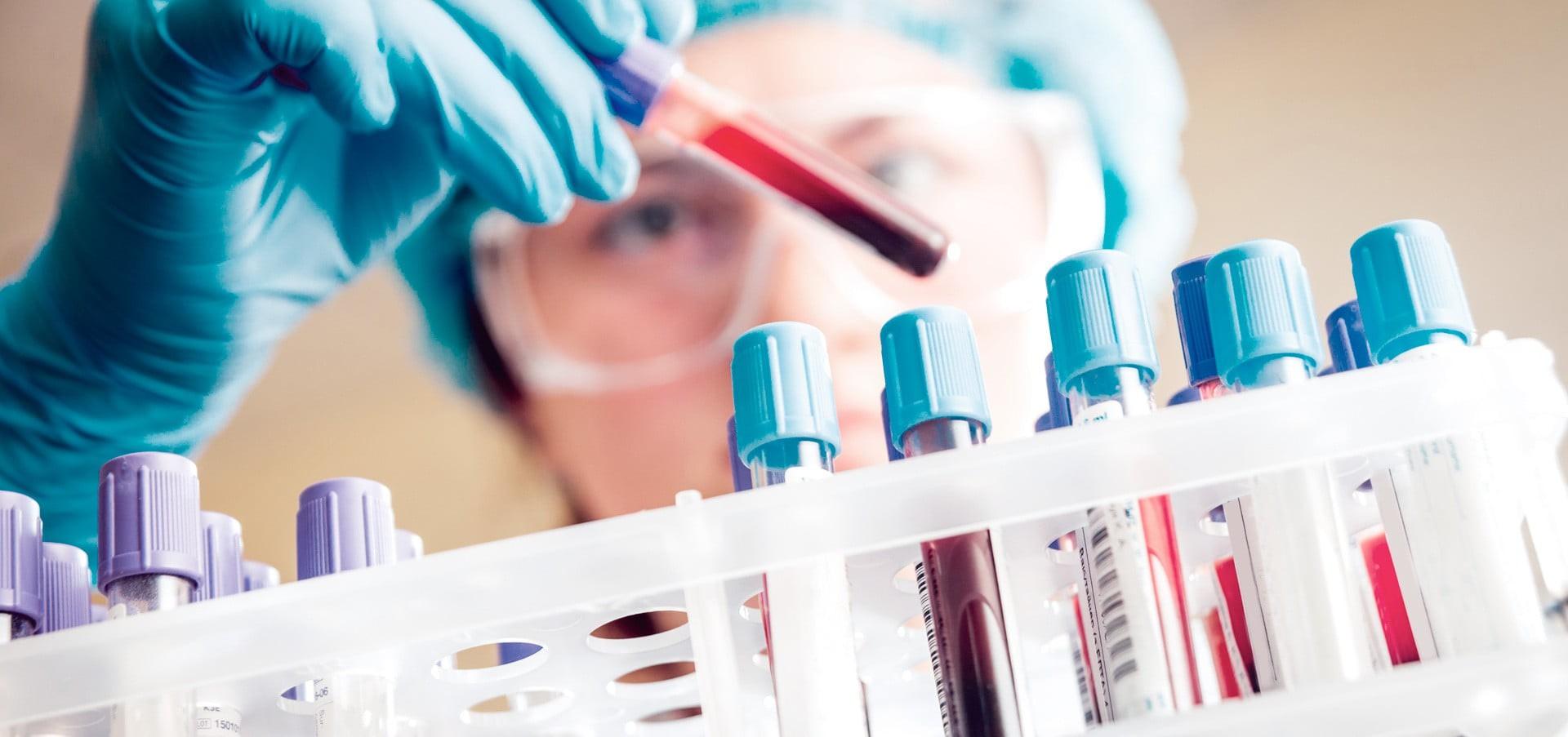Biobsia líquida ADN libre circulante